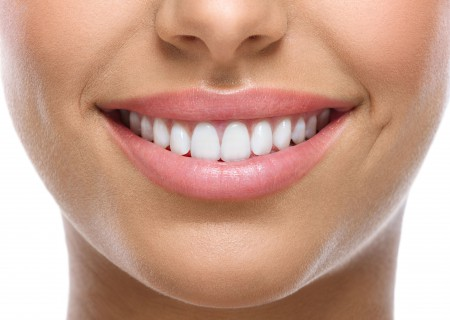 Carillas dentales en Javea